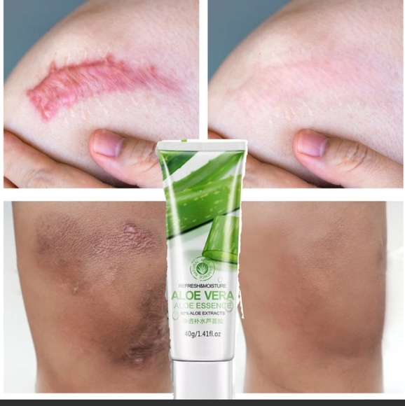 Aloe Vera Makeup Repair Scar Cream Removal Acne Scar Poshmark